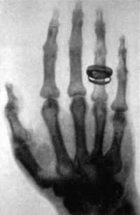 X-ray of von Kollikers hand
